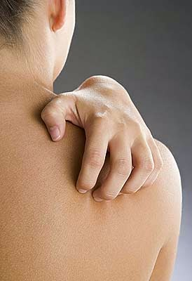 How to Relieve Pruritus in Chronic Kidney Disease 5 stage