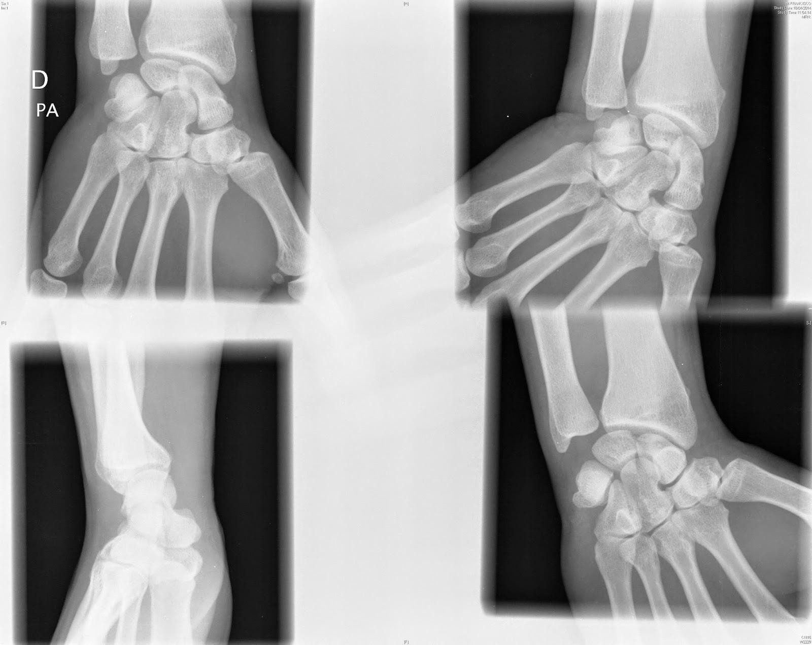 Tecnicos Radiologos: Pruebas Radiológicas para la fractura de escafoides