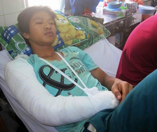 Gia Lai: Một thanh niên bị côn đồ cắt lưỡi