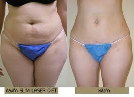 เลเซอร์สลายไขมัน Laser Lipo ลดความอ้วน