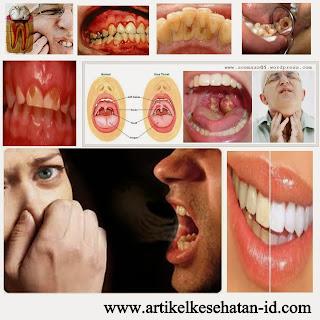 14 Macam Penyakit Gigi
