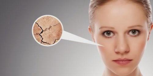 cara mengatasi kulit wajah mengelupas