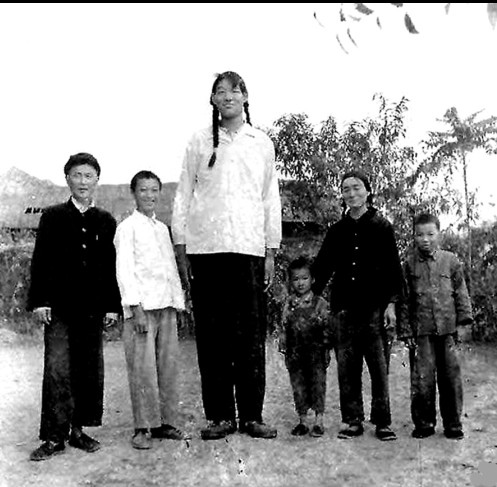 Zeng jinlian was another medical phenomenon and the tallest woman in