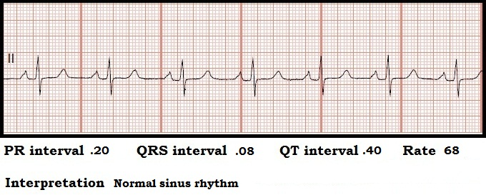 How to Measure the QRS Complex on EKG Strip How