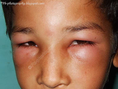 Wasp Sting Swelling Picture