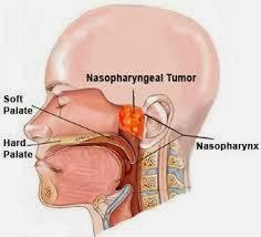 Kanker Nasofaring, Kanker Pada Hidung dan Tenggoroan