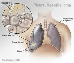 Treatment of Mesothelioma