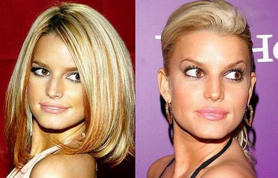 "photo of celebrities plastic surgery в""– 117957"