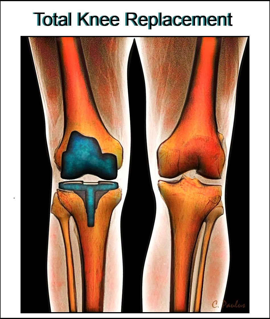 3-D Color Knee X-Ray of a Knee Replacement
