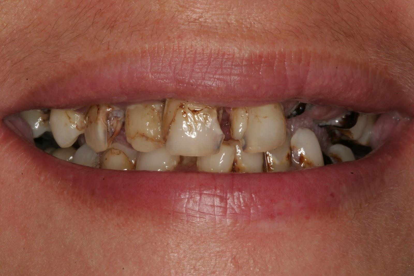 Do Sugary Drinks Effect Teeth Enamel