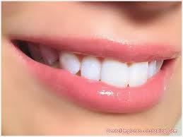 http://www.dentistinchennai.com/teeth-whitening-or-bleaching.php