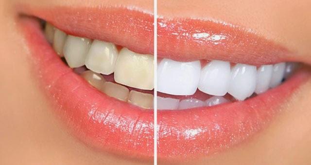 Cara Memutihkan Gigi Dengan Mudah Cara Dan Tutorial