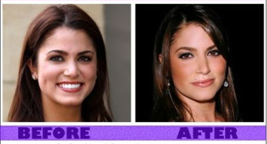 Nikki Reed Plastic Surgery Before And After Photos