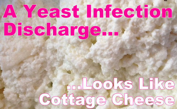Cottage Cheese Discharge Yeast Infection | www.pixshark ...