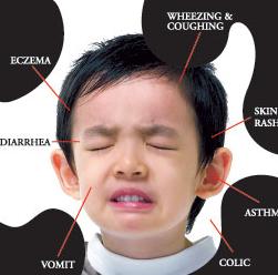 mengatasi alergi susu