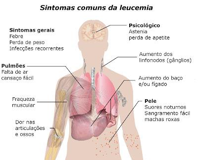 Sintomas mais comuns da leucemia