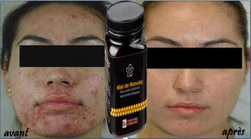 miel de manuka et acne