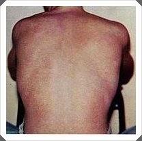 punggung penderita demam berdarah