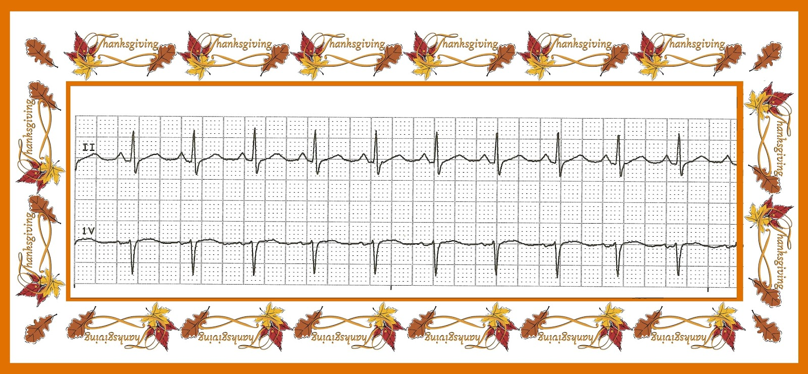 Telemetry technician course ekg practice quiz 02 identify the following rhythm xflitez Choice Image