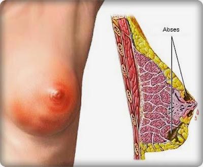 5 Penyebab kelainan payudara pada wanita