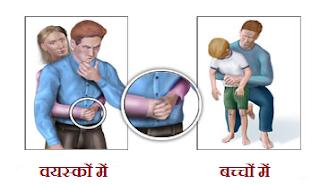 Choking First Aid technique in Hindi.