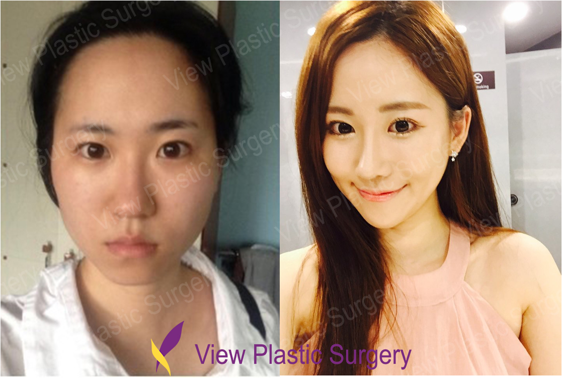 View Plastic Surgery Korea