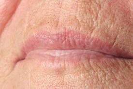 Acn : traitement de l'acn chez la femme - aufeminincom