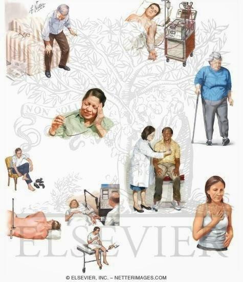 Sindrome de imobilidade em idosos hospitalizados com doença de alzheimer 10