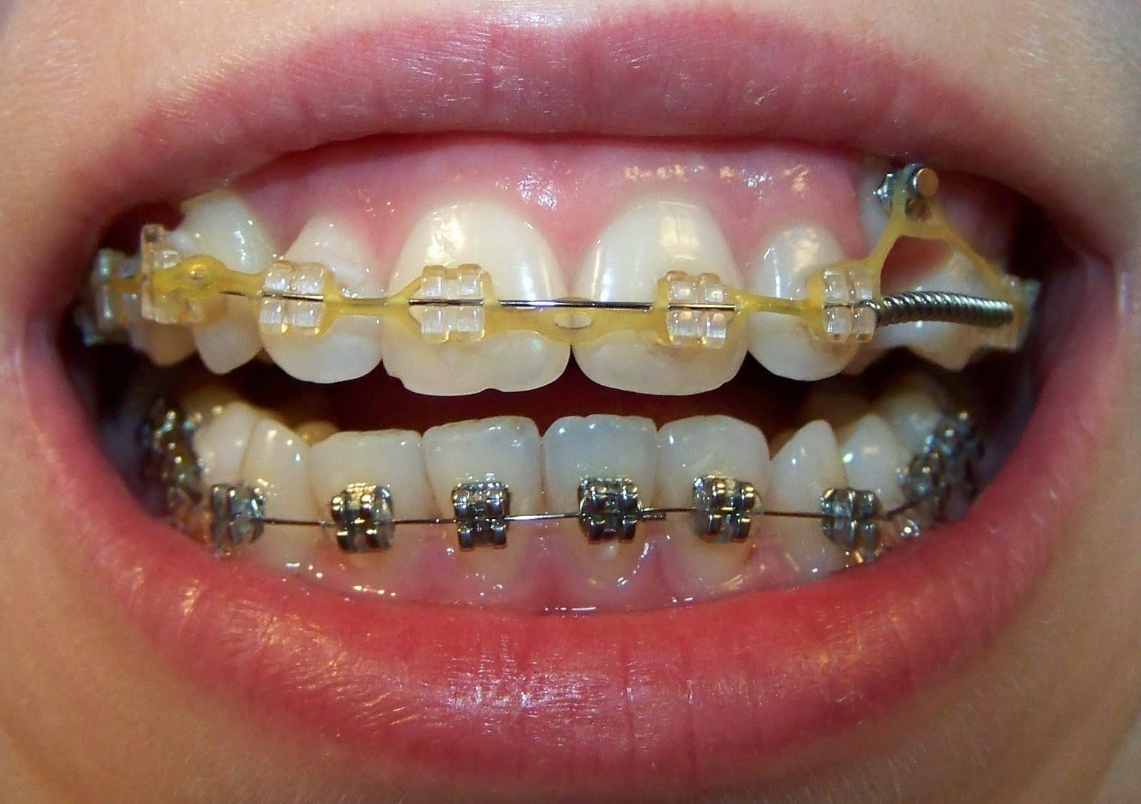 лечение зубов при ношении брекетов Элайнеры для выравнивания зубов в Твери. Исправление.
