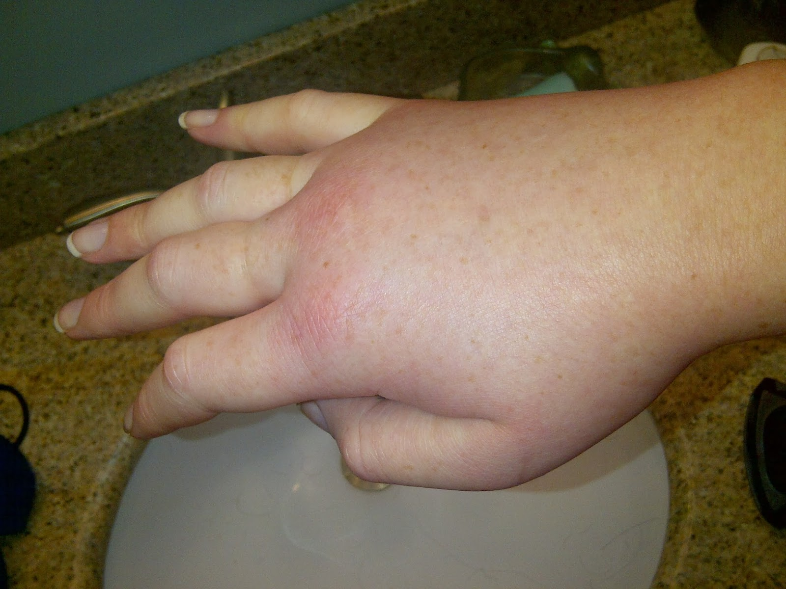 Are swollen fingers a cause for alarm?