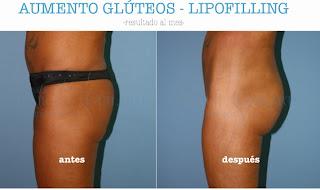 lipofilling_gluteo_nalgas_culo_relleno