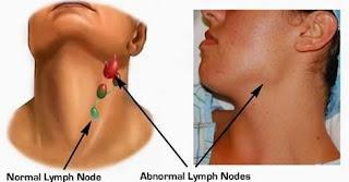 Solusi Pengobatan penyakit Benjolan Di Leher Secara Alami