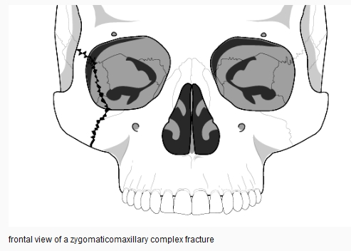 Management of Zygomatic Complex Fracture