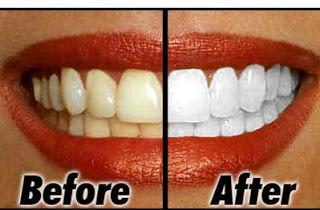 Cara Memutihkan Gigi Secara Alami Cepat Dan Mudah Tips Trik