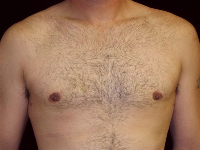 After photo with breast gland excision