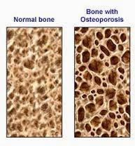 Kopi Penyebab Osteoporosis