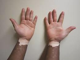 Faktor Penyebab Penyakit Vitiligo
