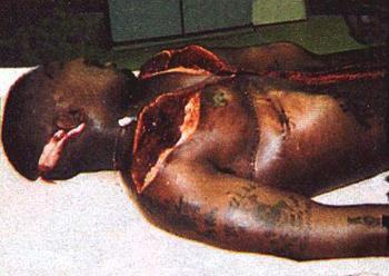 biggie smalls autopsy photo.