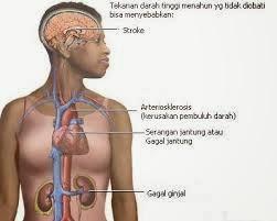 penyakit darah tinggi
