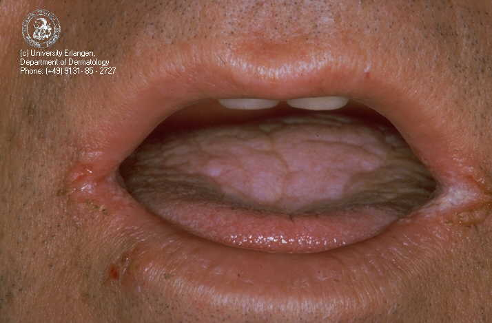 Herpes Simplex 1 In Mouth Cure for herpes simplex type 1