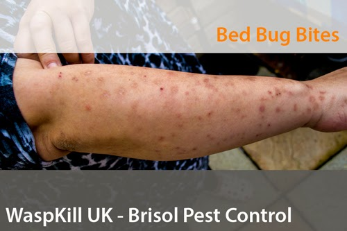 serious bed bug bites