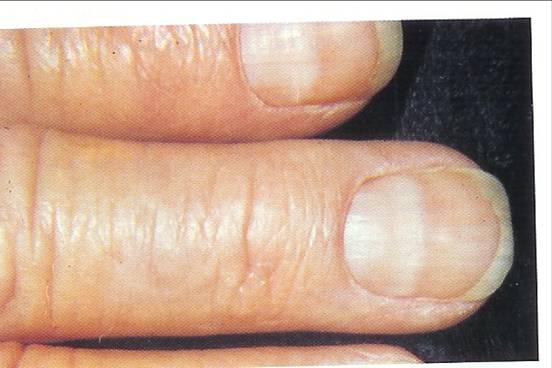 Enlarged Moons On The Other Hand Can Indicate An Over Active Thyroid But Also Be Genetic