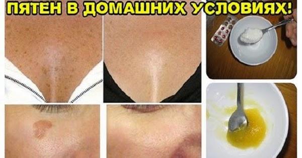 Отбелить кожу тела в домашних условиях быстро