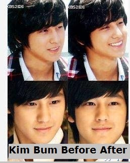 kim sang bum before and after plastic surgery