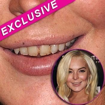 Lindsay Lohan Anorexia 2