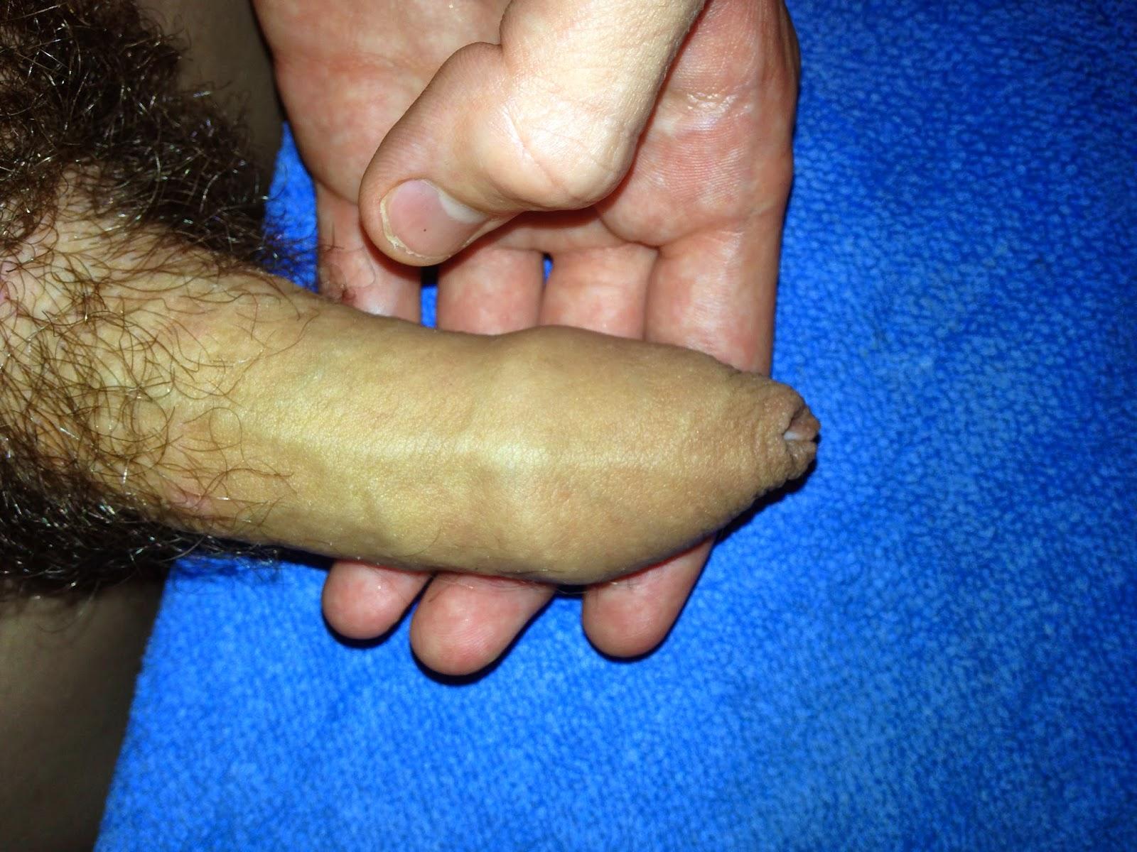 O pênis mais pequeno