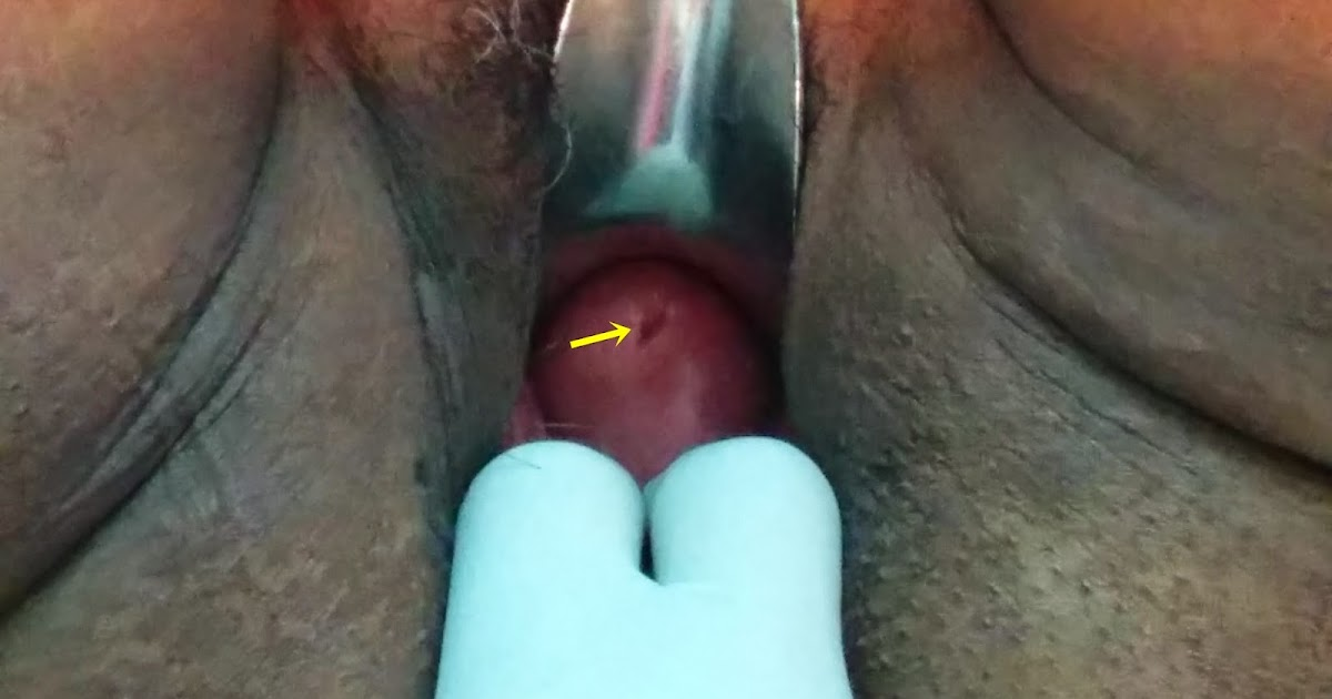 journal of postgraduate gynecology amp obstetrics vaginal