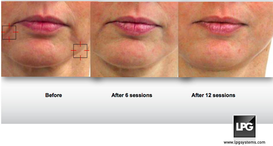 LPG endermospa before and after