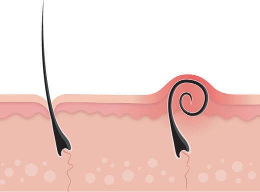 Quistes en los Ovarios - Como Curar los Quistes de