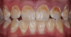 chennaibraces: Tips to prevent tooth decay or caries ...